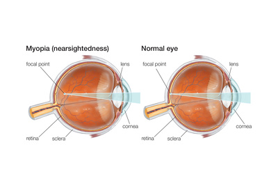 Farsighted Eye (Hyperopia). Convex Lens, Ophthalmology, Health and Disease Posters by  Encyclopaedia Britannica