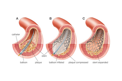Balloon Angioplasty and Stent Insertion. Cardiovascular System, Health and Disease Print by  Encyclopaedia Britannica