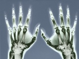 X-ray of Hands Photographic Print