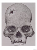 Trepanned Skull, from Incidents of Travel and Exploration in the Land of the Incas Giclee Print