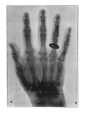 X-Ray Image, from &#39;L&#39;Illustration&#39;, 25th January 1896 (B/W Photo) Giclee Print by  French Photographer