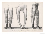 Bow Legs and Their Treatment with Apparatus Intended to Straighten Them Lámina giclée por Langlume