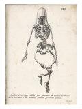 Skeleton of an Adult Patient Afflicted with Rickets Premium Giclee Print by  Langlume