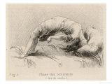 P. Richer - Mental Patient at la Salpetriere Going Through the Phase of Contortions Digitálně vytištěná reprodukce