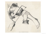 Amputation of Leg Giclee Print