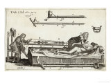 Surgeons Setting a Bone with the Help of Michault's Bone- Setting Apparatus Giclee Print by E.a. Sohn