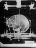 """X-Ray Picture of Patients Skull in Metal Frame with Path of Needle Marked by """"X"""" Premium Photographic Print by Al Fenn"""