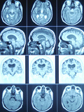 Cat Scan Images of Brain Photographic Print