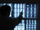 Doctor Pointing to X-Ray Images on Computer Screen Photographic Print