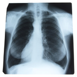 X-Ray Photograph of Person's Lungs Photographic Print