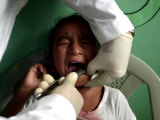 A Girl, 6, Cries as Dentist Allan Castellanos Removes a Molar Toot Photographic Print