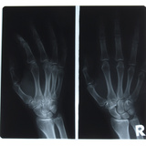 X-Ray Photograph of Person's Hands Reprodukcja zdjęcia