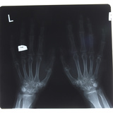 Close-up of X-Ray Photograph of Hands Photographic Print