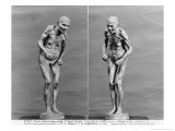 Statuette of an Old Woman with Parkinson&#39;s Disease, After 1895 Giclee Print by Paul Marie Louis Pierre Richer