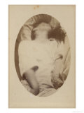 Hysterical Epilepsy, Plate XVII, Paris, c.1876 Giclee Print by Paul Regnard