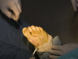 A Foot Gets Sewn Back up with Stitches after Surgery, Washington, District of Columbia Photographic Print by Taylor S. Kennedy