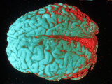 Human Brain Red and Blue Photographic Print
