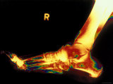 X-Ray of Foot Right Foot Photographic Print