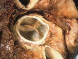 Tricuspid Valve of Heart an Atrioventricular Valve Photographic Print
