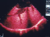 B-Color Echocardiogram Tricuspid Regurgitation Photographic Print