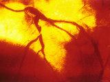 Coronary Angiogram Left Anterior Decending Artery Photographic Print