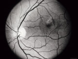 Clinical Central Serous Choroidopathy Os Photographic Print