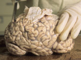 Hospital Morgue Preparing Brain for Autopsy Photographic Print