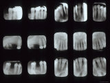 15 Dental X-Rays Photographic Print