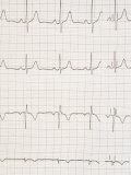 Normal EKG Rate and Rhythm No Ischemic Changes Photographic Print