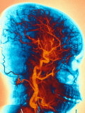 Angiogram, Human Head, Vessels Photographic Print