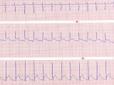 ECG Showing Sinus Tachycardia Photographic Print