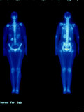 Technetium 99 Nuclear Med Bone Scan Whole Body Photographic Print
