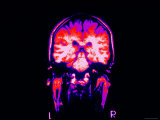 MRI Head Scan Normal Purple Brain Head Photographic Print