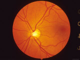 Normal Retina View Thru Fundus Photographie