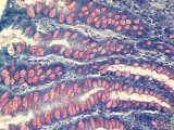 Simple Columnar Epithelium Goblet Cells, Lg.Intestine Photographic Print