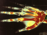 Digitized X-Ray of Normal Human Hand Photographic Print