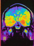 Magnetic Resonance Imaging MRI of Head Photographic Print