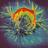 Breast Cancer Cell Gynecology Research Photographic Print