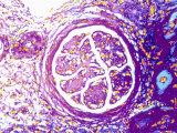 Glomerulus Psuedocolored Micrograph Photographic Print