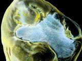 Sem Wisdom Tooth with Amalgam Filling, Enhanced Photographic Print