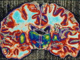 Brain Section, Cerebellum Section Photographic Print