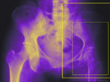 Xray Colorized Female Hip Pelvis Osteoporosis Photographic Print