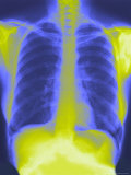 Normal Chest X-Ray with Spine and Ribs Photographie