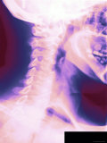 Colorized X-Ray Showing Normal Cervical Spine Lateral View Vertebrae C1-C7 Photographic Print