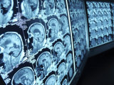 Blue Rows of Cat Scan Images of the Brain Photographic Print