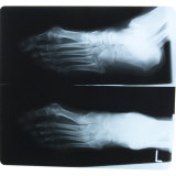 Black and White X-Ray Photograph of Feet of Person Photographic Print