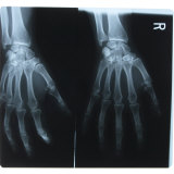 Black and White X-Ray Photograph of Hands of Person Photographic Print