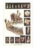 Diseases of the Teeth Posters