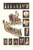 Diseases of the Teeth Prints