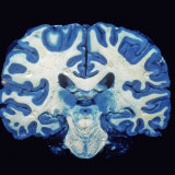 Brain, Coronal Section, Grey Matter Stained Blue Photographie par Ralph Hutchings